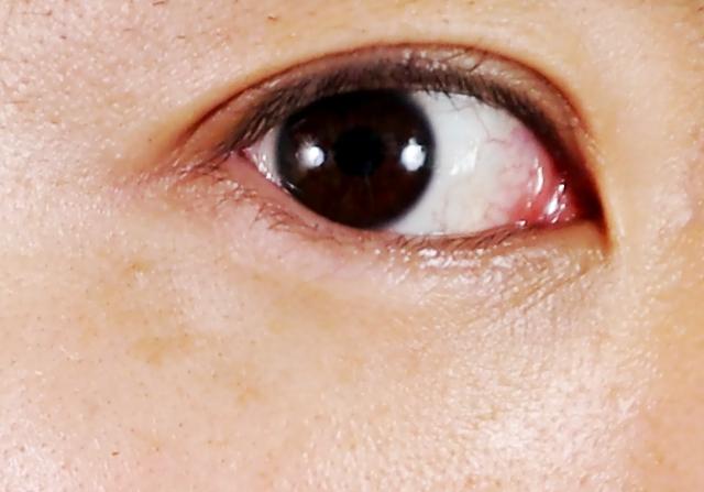 三週間目のシミ右目